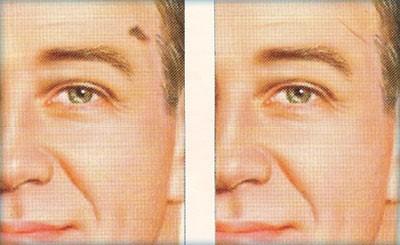Removing skin cancer cells