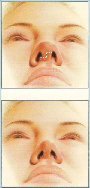 جراحی بینی rhinoplasty