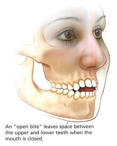 Orthognathic Surgery جراحی فک
