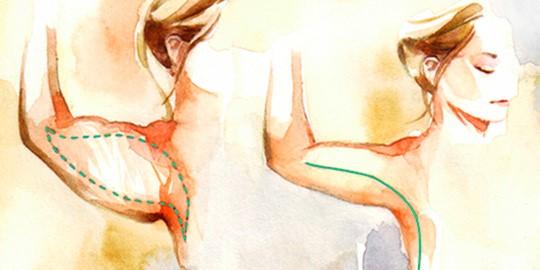 Upper Arm Lift لیفت بازو